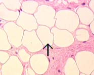 Image of adipose tissue