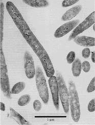 Picture of the Bacillus infernus