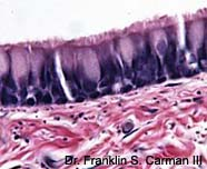 Image of ciliated columnar eithileium cells
