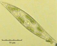 Image of a living diatom