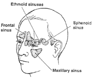 Graphic of sinuses in human head